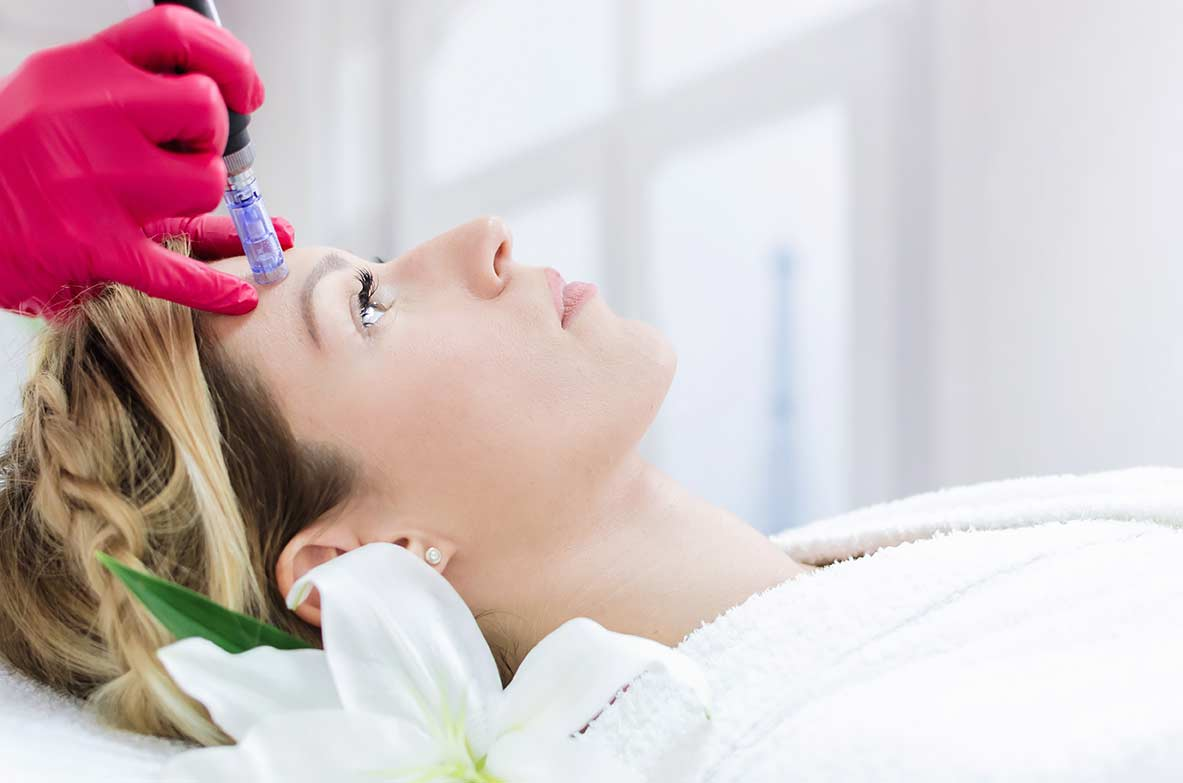 Ultherapy Microneedling