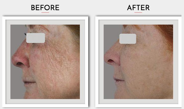SharpLight Skin Rejuvenation Treatment Packages From